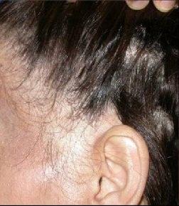 El medio para la densidad de los cabello a los hombres