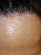 El aceite de bardana y el coñac smyvka para los cabellos